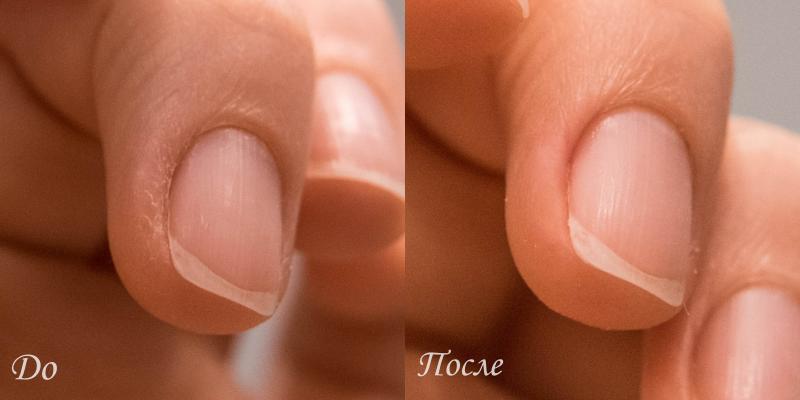 Пилка для кожи вокруг ногтя